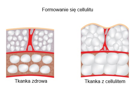 Cellulit tkanka zdrowa i z cellulitem