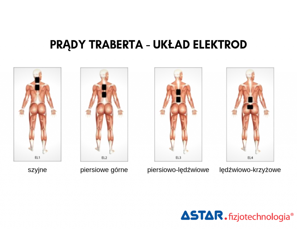 Prąd Traberta - układ elektrod