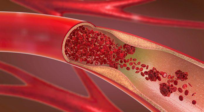Choroba Bürgera – zakrzepowo-zarostowe zapalenie tętnic