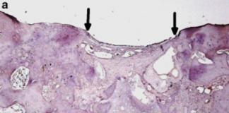 Synteza kolagenu u krolika w grupie kontrolnej