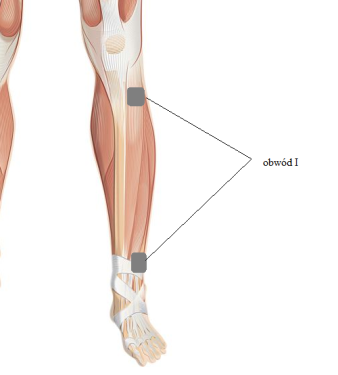 Zmniejszenie spastyczności wwyniku uszkodzenia rdzenia kręgowego - prąd TENS