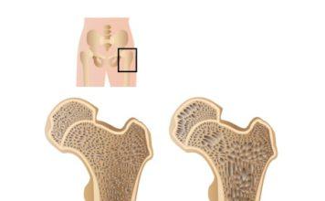 Osteoporosis 450