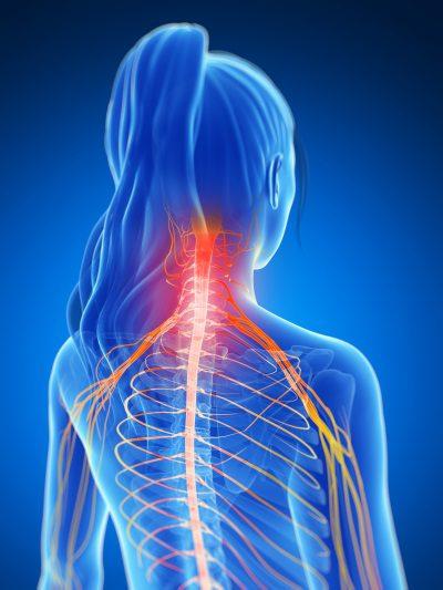 Laseroterapia w odcinku szyjnym kręgosłupa