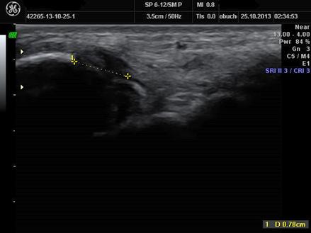 ryc. 2. Obraz uszkodzonego więzadła piszczelowo-skokowego orazpiszczelowo-piętowego