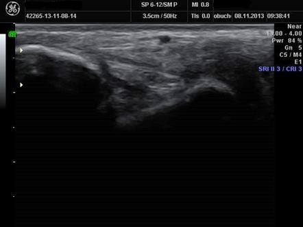 Ryc. 4. Obraz więzadła piszczelowo-skokowego poserii zabiegów