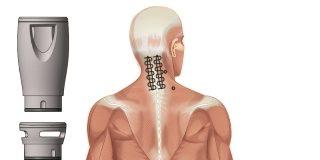 Laseroterapia wysokoenergetyczna odcinek szyjny kregosłupa