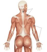 zespol szyjno barkowy pormieniowanie nerw promieniowy c5