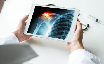 Zapalenie kaletki podbarkowej - leczenie z użyciem laseroterapii wysokoenergetycznej