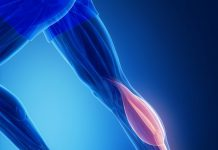 Gastrocnemius muscle strain