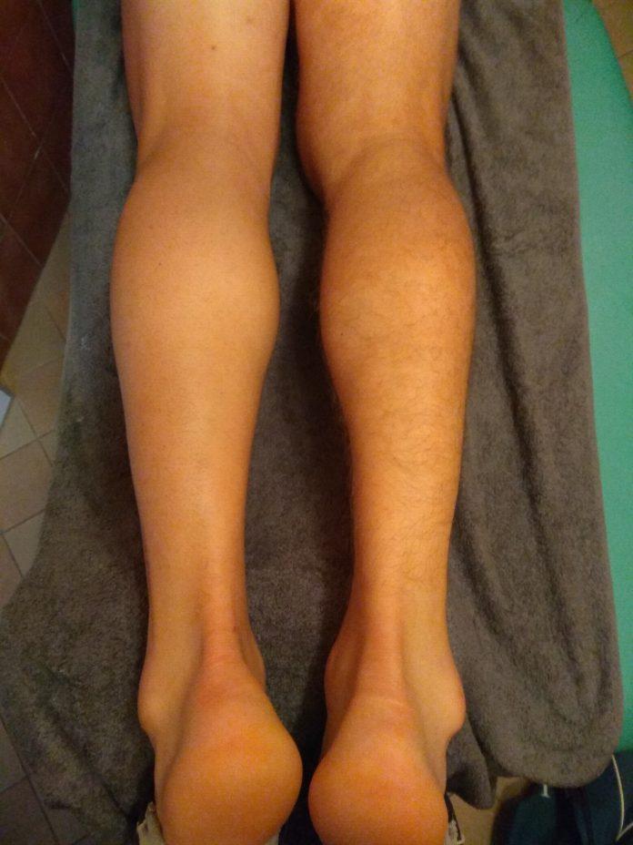 Badanie kontrolne mięśnia brzuchatego łydki - ultrasonografia
