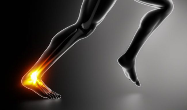 Sports ankle injury concept