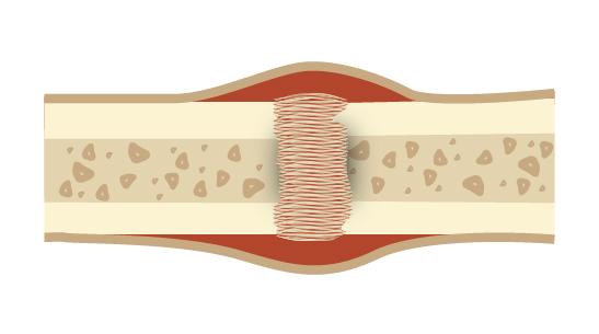 Faza zrostu kości obraz poglądowy - ultradźwięki oniskiej intensywności