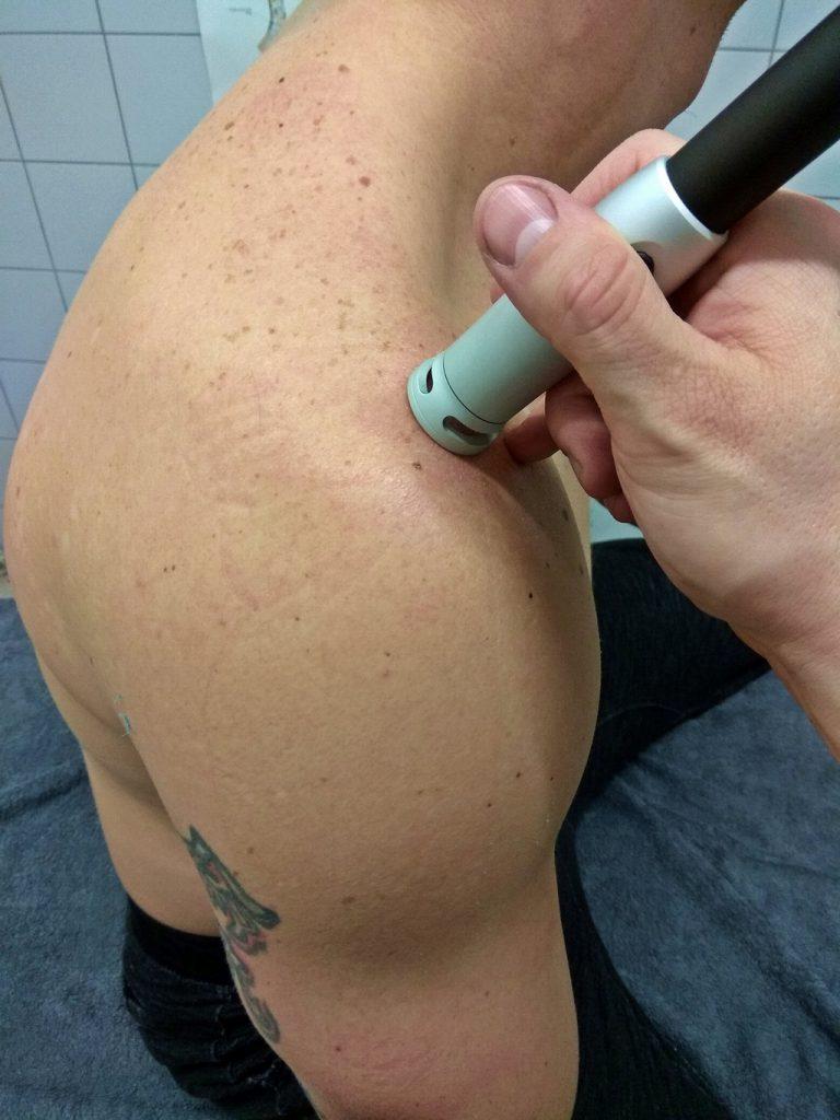 Laseroterapia wysokoenergetyczna - uraz stawu barkowo-obojczykowego