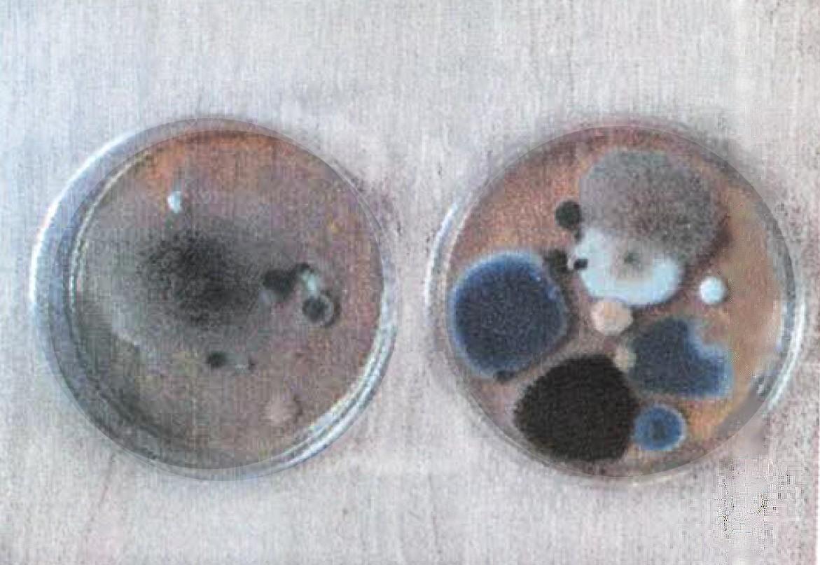 próbki bakterii igrzybów