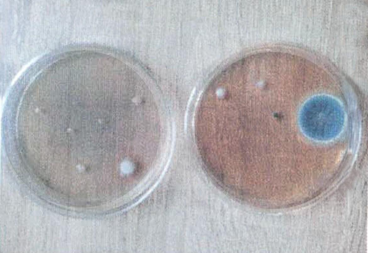 lampa bakteriobójcza bakterie