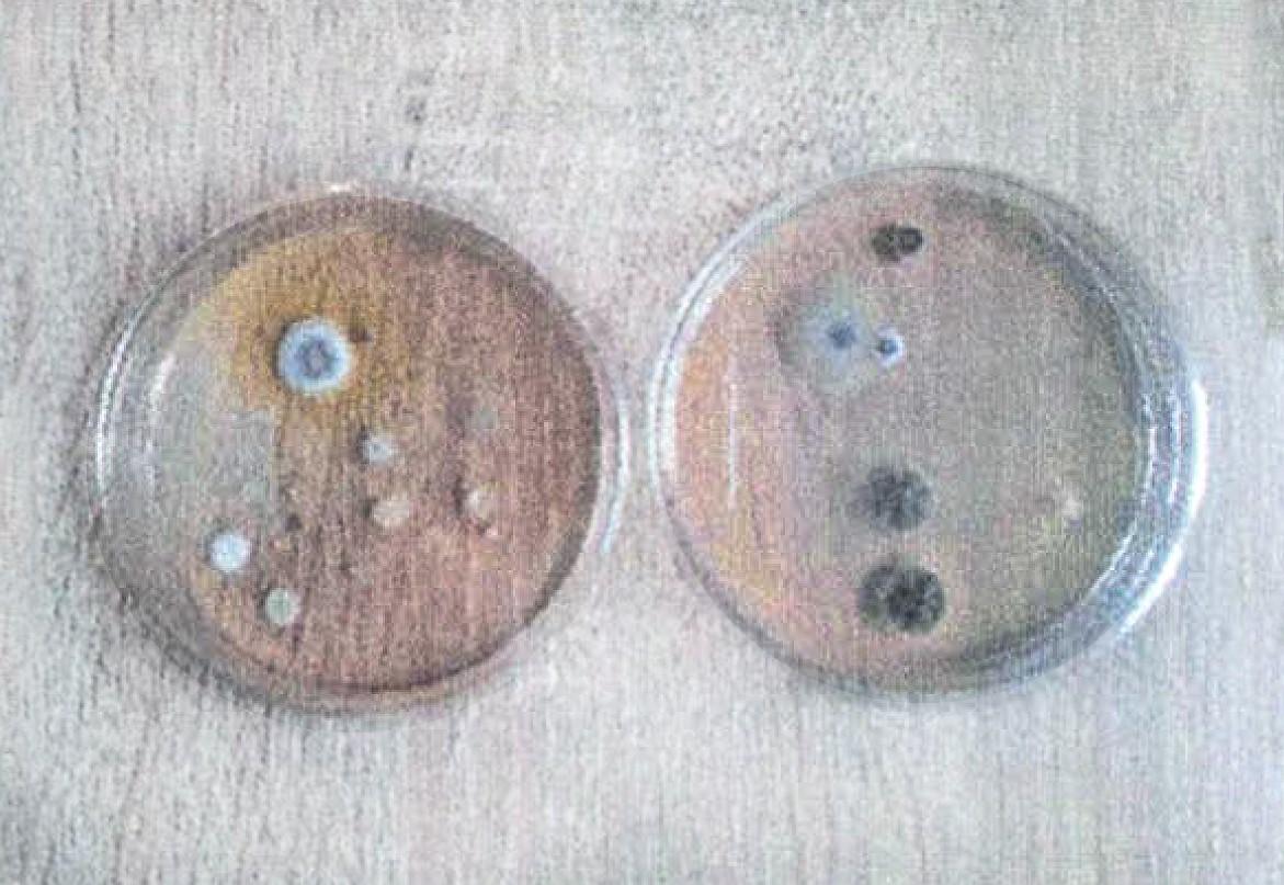 bakterie igrzyby pouv